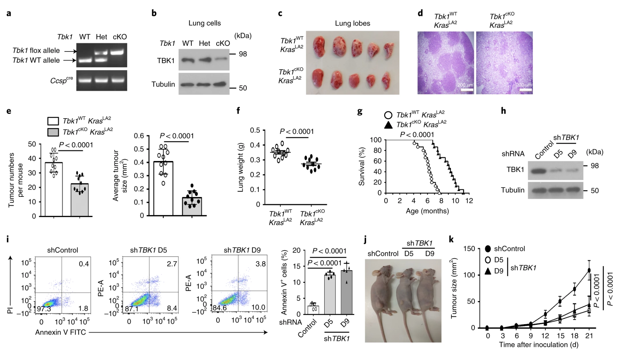 TBKBP1 and TBK1 form a growth factor signalling axis mediating immunosuppression and tumourigenesis